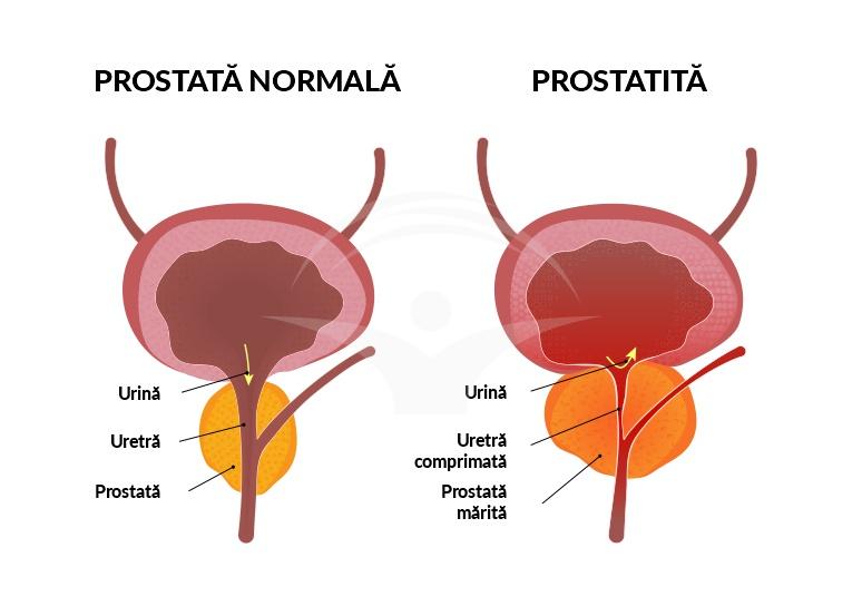 prostatita cronică poate afecta erecția)