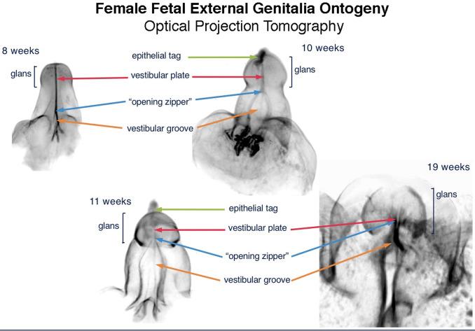 testul motivelor de erecție hidropiză pe penis ce este