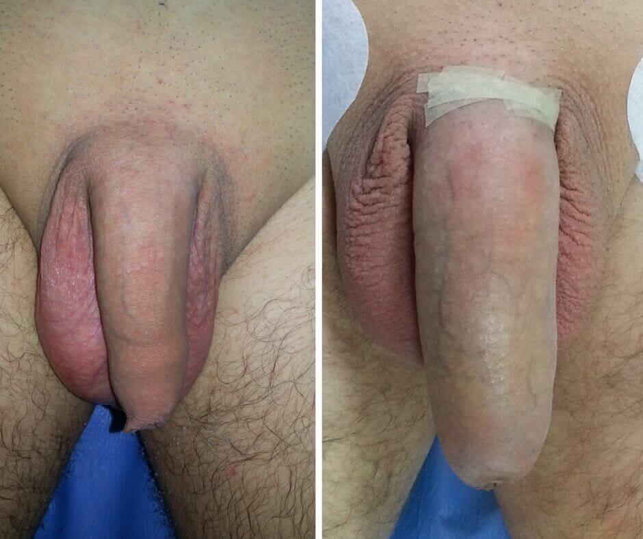 penisuri mici în stare de erecție)