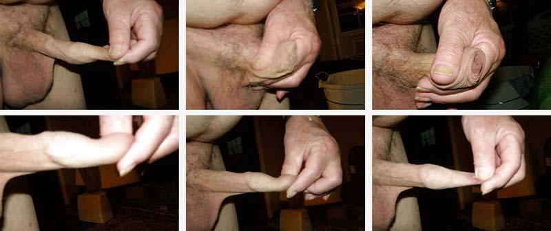 aveți o intervenție chirurgicală de mărire a penisului)