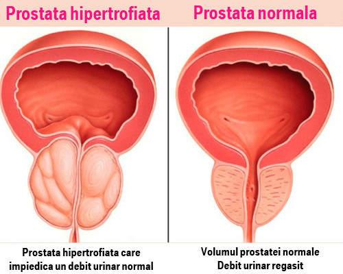 Problemele de prostată