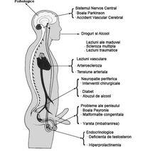 Erectie slaba - produse potenta - tratament erectie slaba   alaskanmalamutes.ro