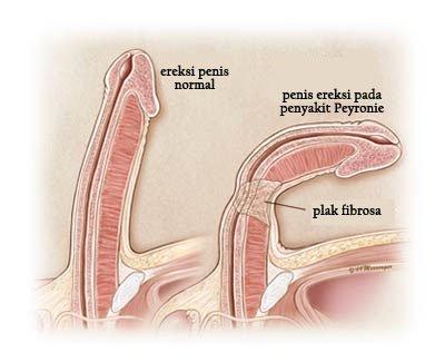 simptome ale bolii penisului)